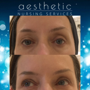 dermal fillers to the temples