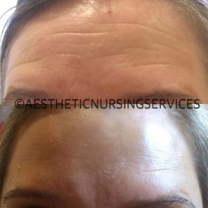 forehead rejuvenation